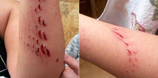 Gran Canarie: ragazza aggredita da uno squalo